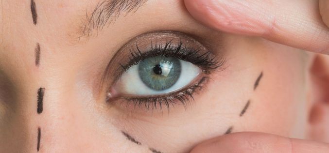 What You Need To Know About Blepharoplasty