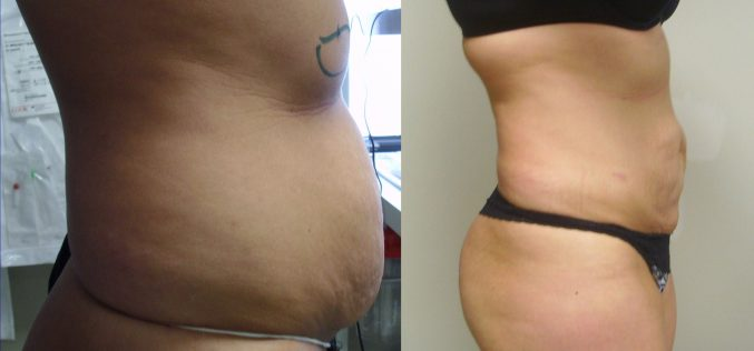 How Would You Choose Right Clinic For Laser Liposuction?