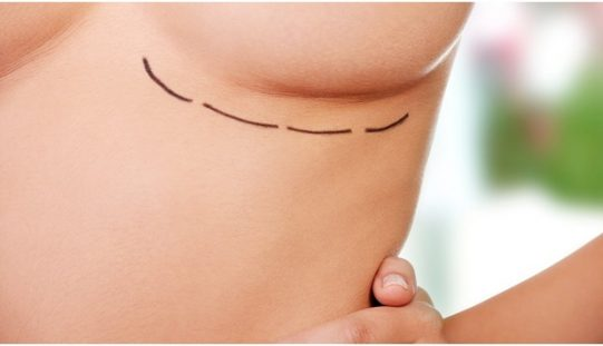 Learn more about Natural breast enhancement ingredient program