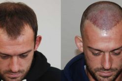 Hair Transplant in Turkey with the Budget cost Concern