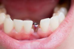 5 Things You Need to Consider Before Getting Dental Implants