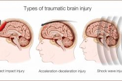 What to Know about Traumatic Brain Injury (TBI)