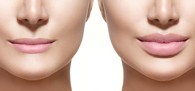 What Are the Most Common Plastic Surgery Procedures?