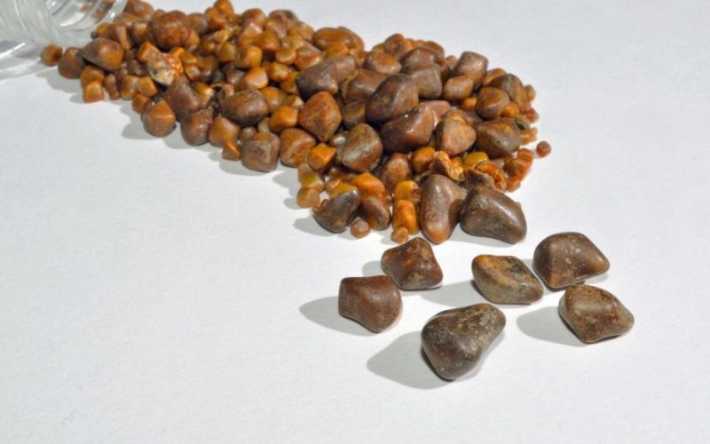 Your All-Important Guide to Gallstones: General Info, Symptoms, Treatment, and More
