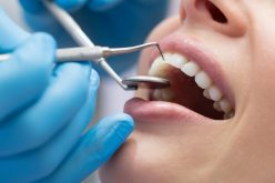 Different Types of Dental Services